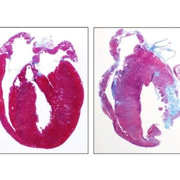 Drug Treats Inflammation Related to Genetic Heart Disease