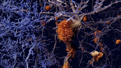 Metabolic Dysfunction Could Be a Potential Therapy for Alzheimer's Disease