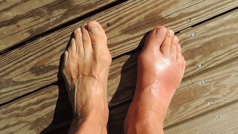 New Target for Treatment of Gout