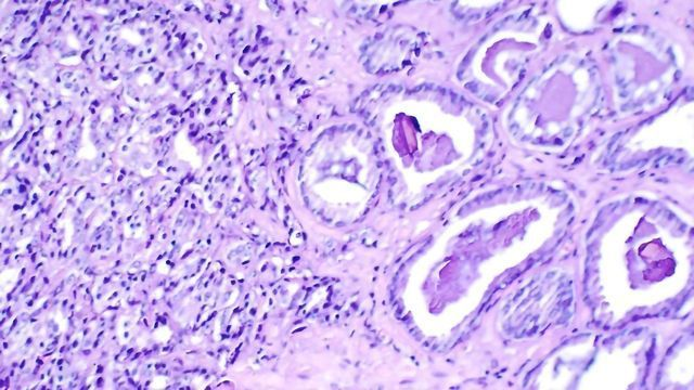 Experts Advise That Men Over 40 With BRCA2 Gene Fault Get Regular PSA Screening