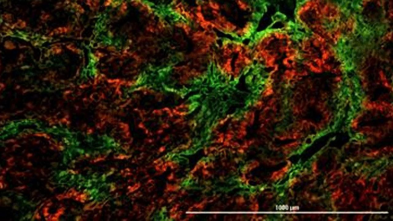 Oxygen-starved Cancer Cells Have Survival Advantage That Promotes Spread