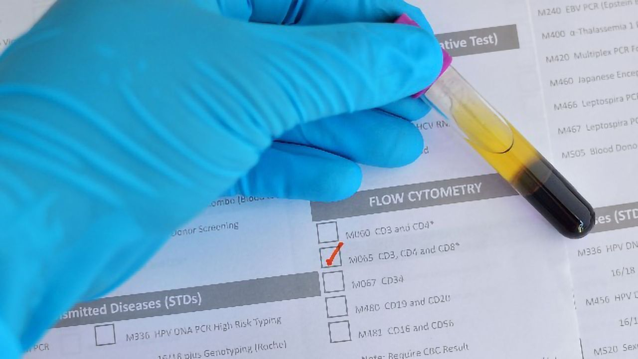 The Value and Versatility of Clinical Flow Cytometry