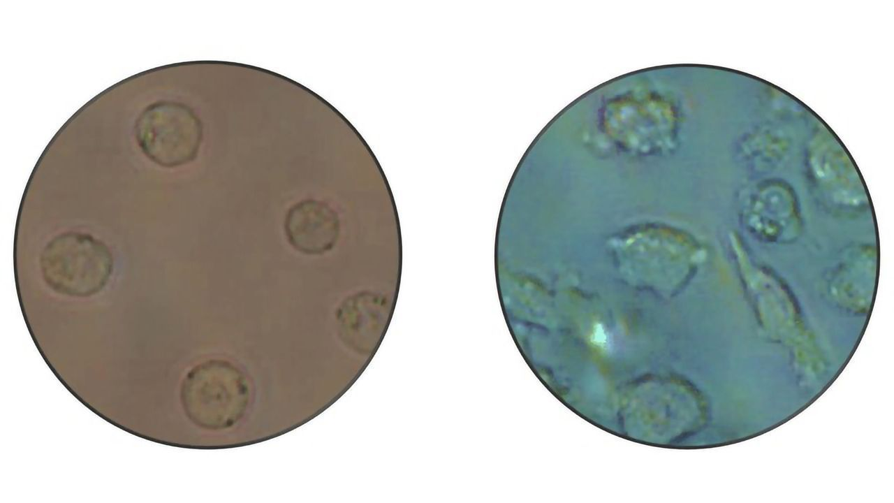 Leukemia Cells Transform Into Non-cancerous Cells