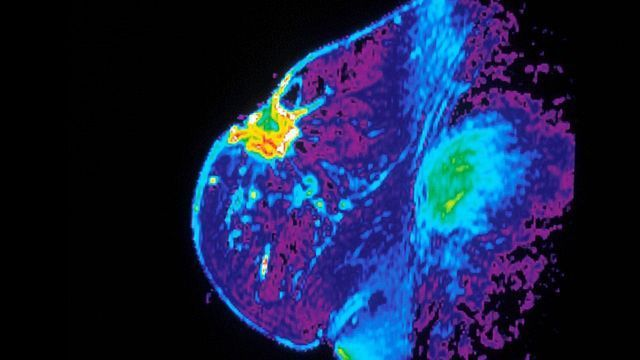 Spread of Breast Cancer Stopped by Blocking Enzyme