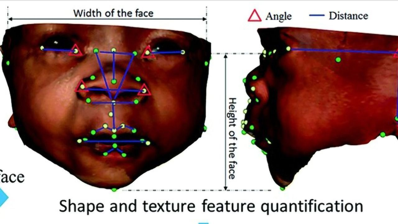 Detecting Genetic Syndromes With Facial Analysis
