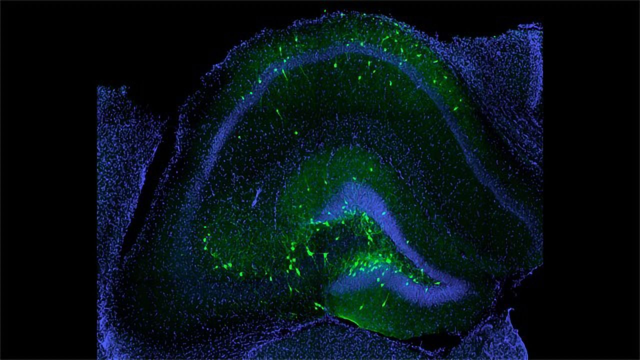 Transplanted Inhibitory Neurons