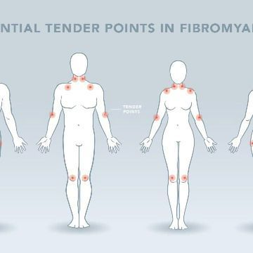 The Neuroscience of Fibromyalgia: Causes, Diagnosis and Potential Treatments