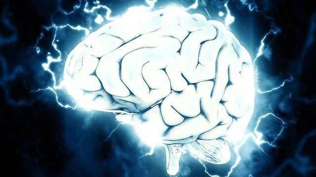 Imaging Study Gives a New View on Functional Neurological Disorder