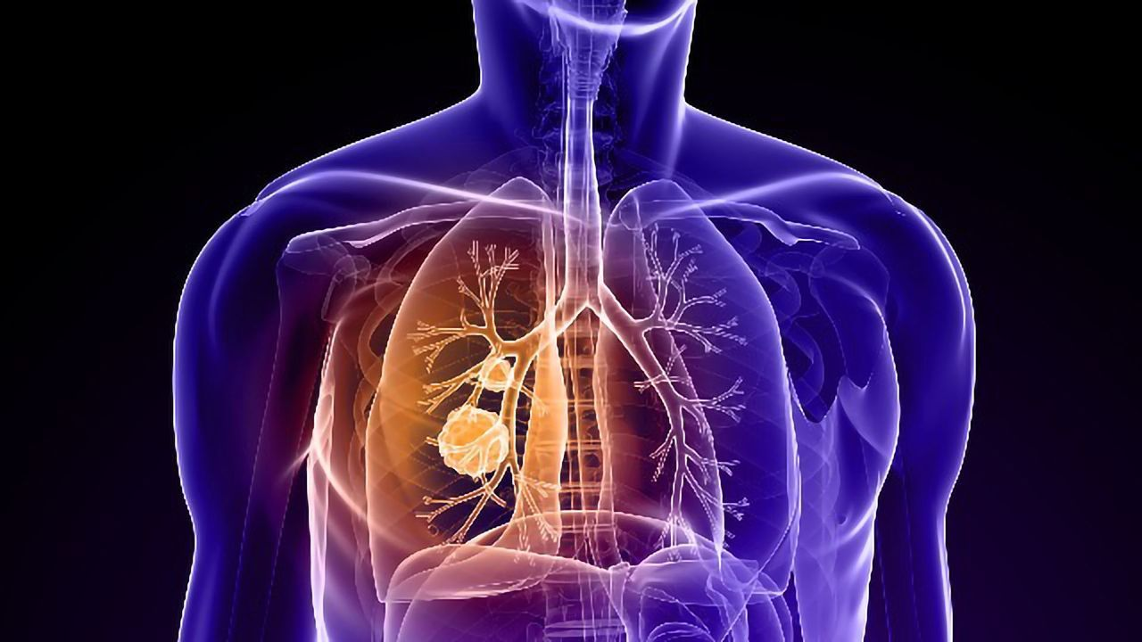 First-in-Human Trial for Novel Lung Cancer Immunotherapy