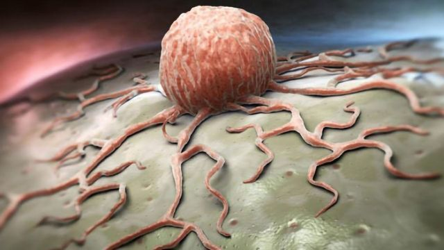 Team Discover How c-Cbl Protein Regulates Tumor Growth