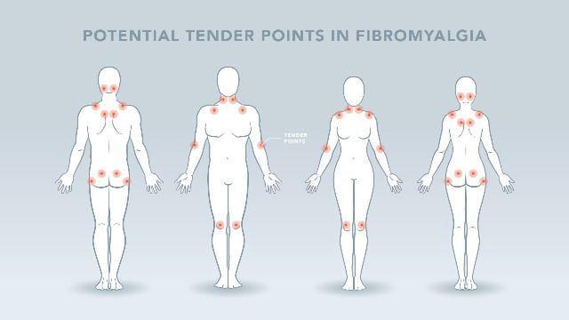 Nerve Stimulation Treatment Could Cut Fibromyalgia Pain