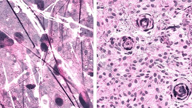 Laser-based Imaging System Teams Up With Algorithm To Identify Brain Tumors