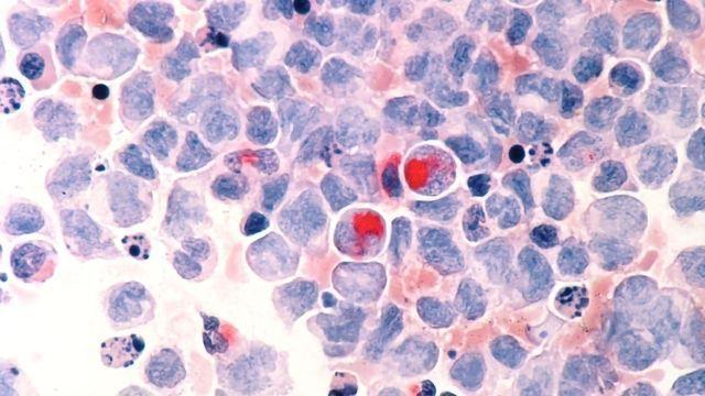 Exploiting Leukemia's Craving for Vitamin B6