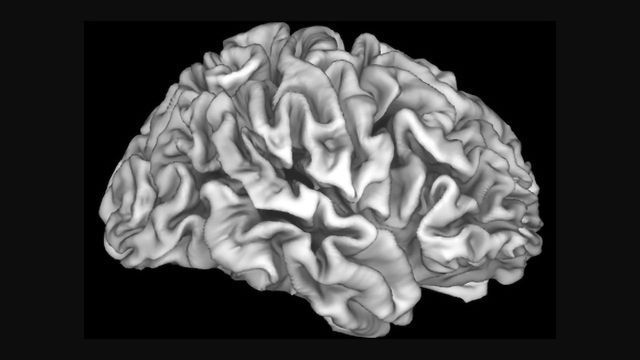 Lead Exposure Linked to Reduced Adolescent Brain Volume