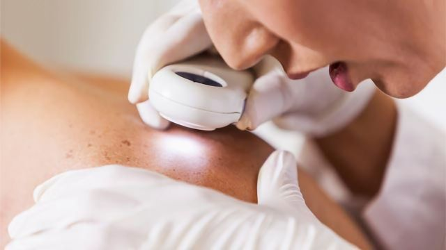 Predicting Melanoma Patients at Risk of Cancer Recurrence