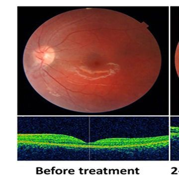 Progression of Eye and Cardiac Disease Halted by Food Supplement