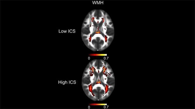 Simple Blood Test Assesses Risk of Cerebral Small Vessel Disease