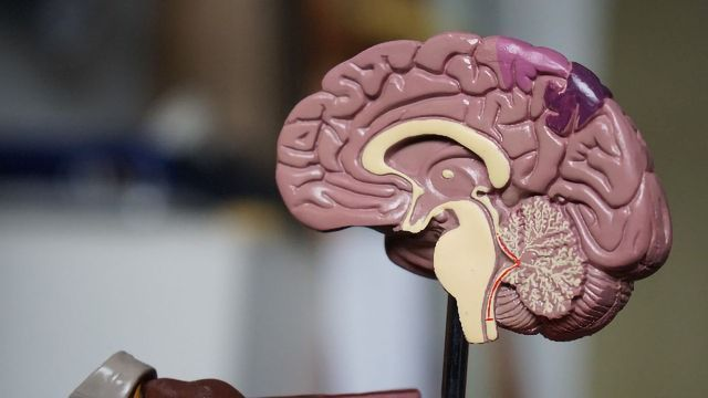 Method Can Distinguish Parkinson's Disease From Multiple System Atrophy