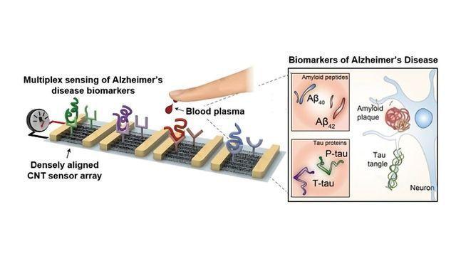 Blood-based Multiplexed Diagnostic Sensor Helps To Detect Alzheimer's Disease