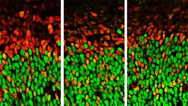 Autism-linked Gene Controls Growth of Developing Brain