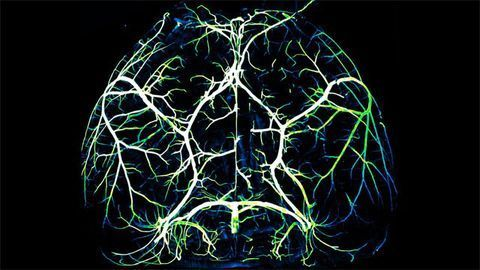 Arteries in the Brain
