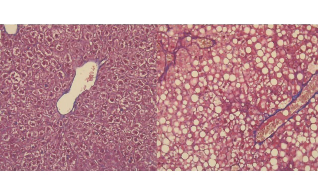 """Protein Participates in Shift From """"Fatty Liver"""" to Cancer"""