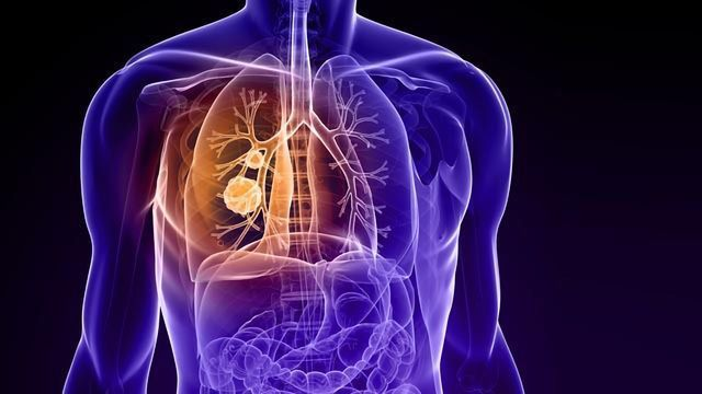New Biomarkers for Diagnosis and Prognosis of Lung Cancer