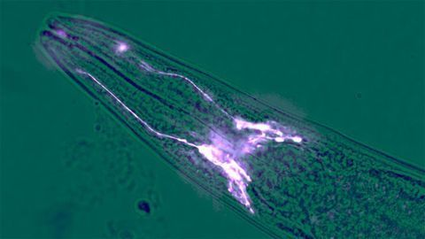 Brain Cells Can Halt Muscle Wastage, Suggests Worm Study
