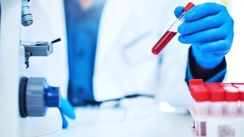 Blood Test Can Predict Clinical Response to Immunotherapy in Metastatic NSCLC