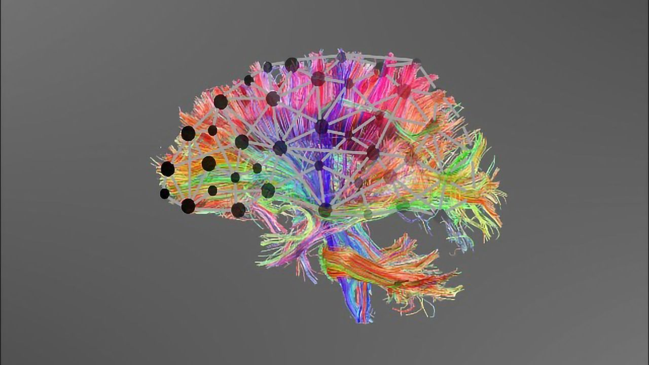 Could Poor Brain Connectivity Explain Learning Difficulties?