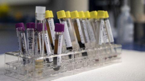FDA Issues New Policy To Help Expedite Availability of Coronavirus Diagnostics