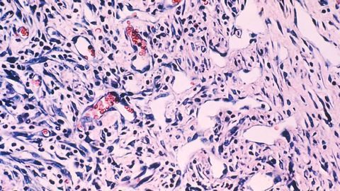 World's Largest Sarcoma Research Database Aims To Revolutionize Treatment
