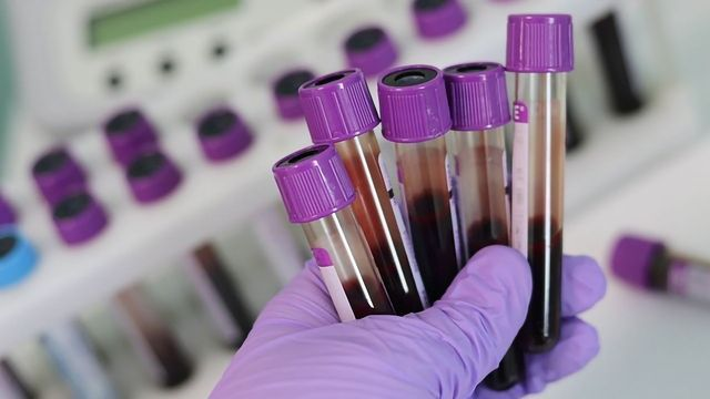 Blood Test Could Predict Alzheimer's Protein Deposits in the Brain