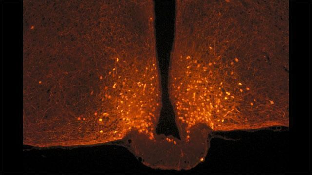 The Shape-changing Brain Cells at the Origin of Satiety