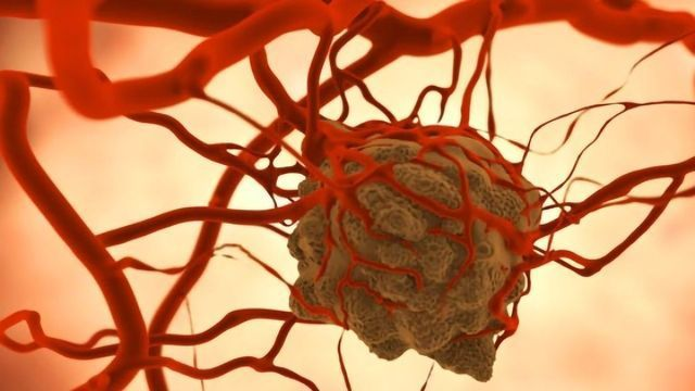 The Immune System Attacks Tumors Remotely