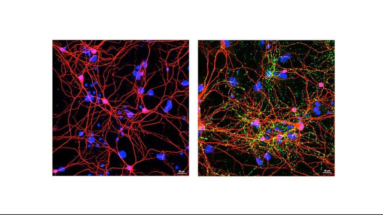 """Turning the Body's """"Natural Killers"""" Against Parkinson's Disease"""