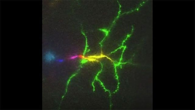 Microscope Can Image a Mouse Brain 1,000 Times a Second