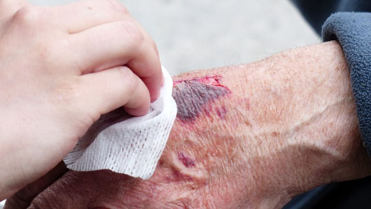 How Skin Cells Prepare To Heal Wounds