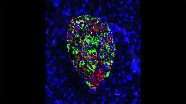 Gene-edited Pancreatic Beta Cells