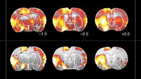 How Dopamine Drives Brain Activity