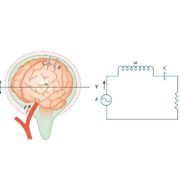 Innovative Technique Measures Pressure in the Skull Using the Brain's Natural Resonance Frequency