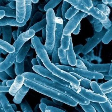 Stopping TB in Its Tracks