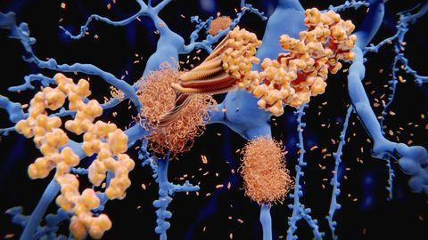 Increased Amyloid Marks Out Healthy People at Risk of Alzheimer's