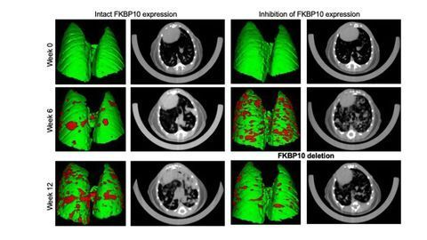 A New Molecular Target for Especially Aggressive Cancers