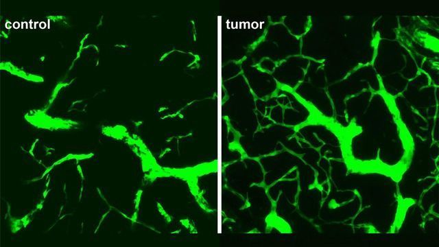A Potential Drug Target To Slow Lymphoma Tumor Growth
