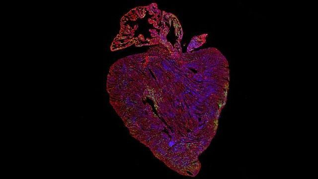 Activating Key Cancer Gene Could Provide First Curative Treatment for Heart Disease