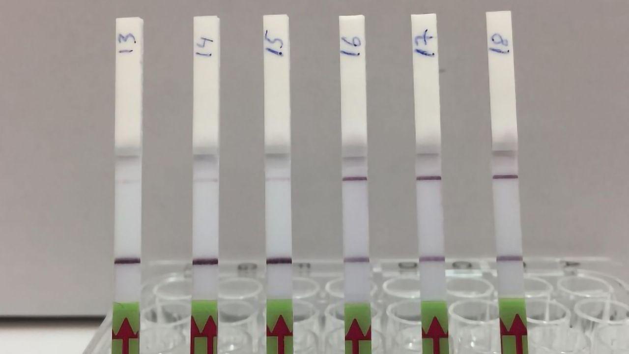 New CRISPR Diagnostic Test for Kidney Transplant Patients
