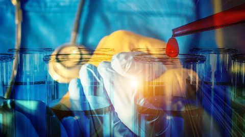 Diagnostic Biomarkers Uncovered for Rare Kidney Cancer