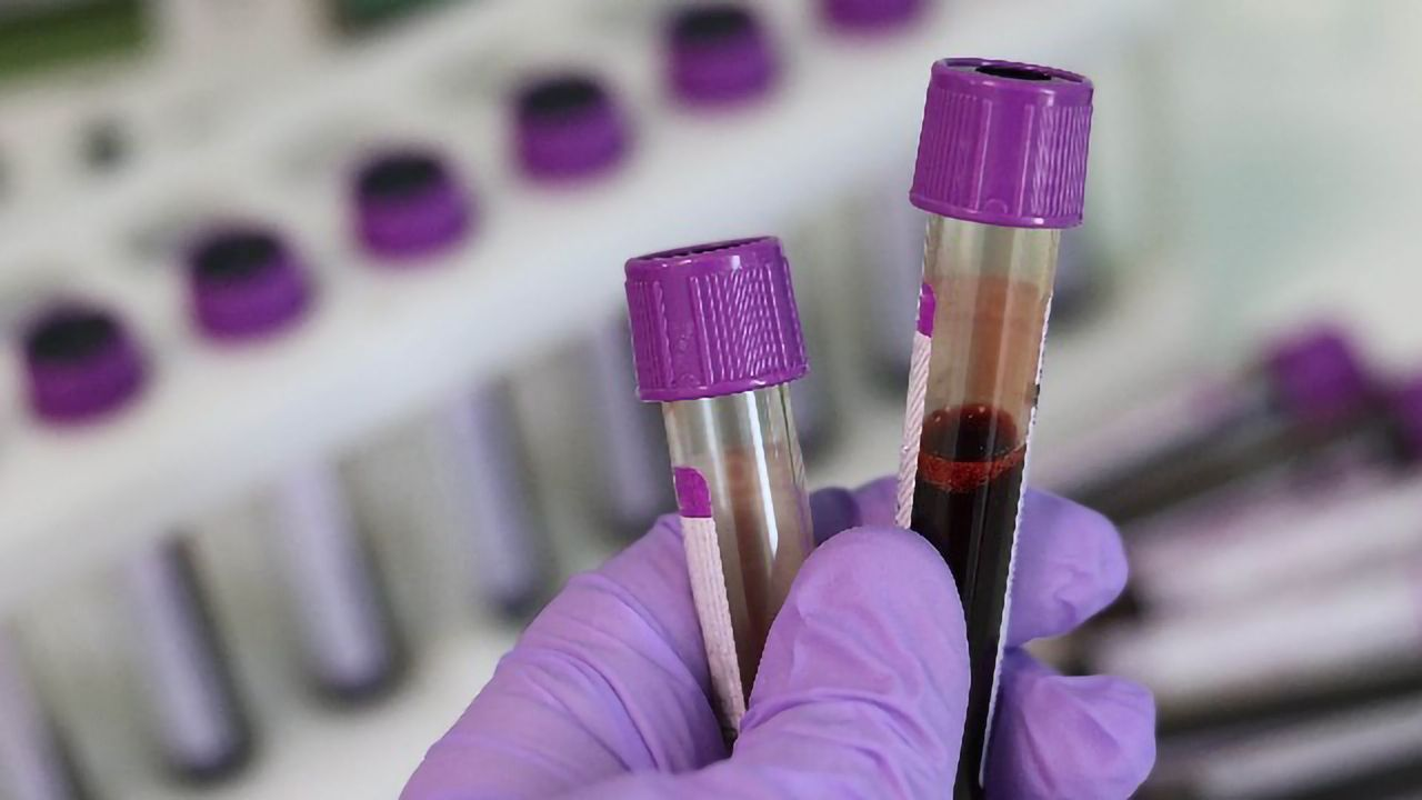 New Method Enables the Early Detection of Sepsis
