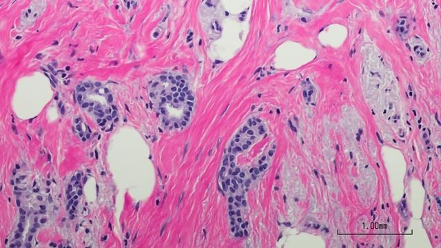 Team Reveal Key to the Survival of Dormant Breast Cancer Cells